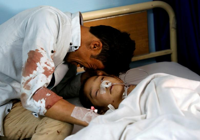 A man cries beside an injured girl at a hospital after a suicide attack in Kabul, Afghanistan, April 22.