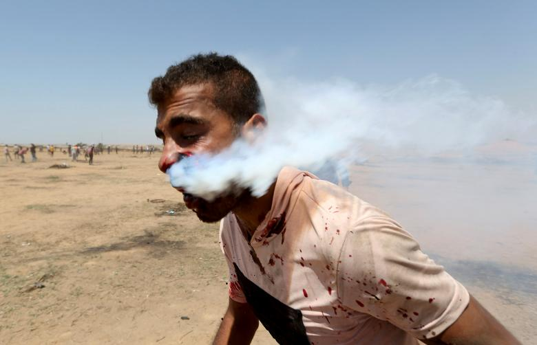 A wounded Palestinian demonstrator, Haitham Abu Sabla, 23, is hit in the face with a tear gas canister fired by Israeli troops during a protest marking al-Quds Day (Jerusalem Day) at the Israel-Gaza border in the southern Gaza Strip, June 8.